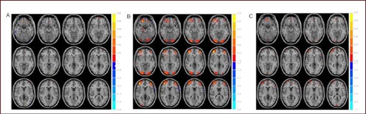 Differences in brain area activation patterns during decision making.